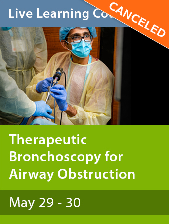 CANCELED: Therapeutic Bronchoscopy for Airway Obstruction May 2020