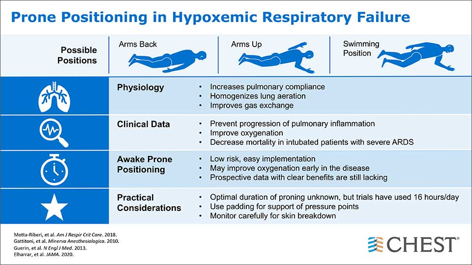 Prone positioning in hypoxemic respiratory failure infographic
