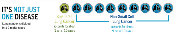 Lung cancer - it's not just one disease