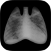 CHEST Radiology App